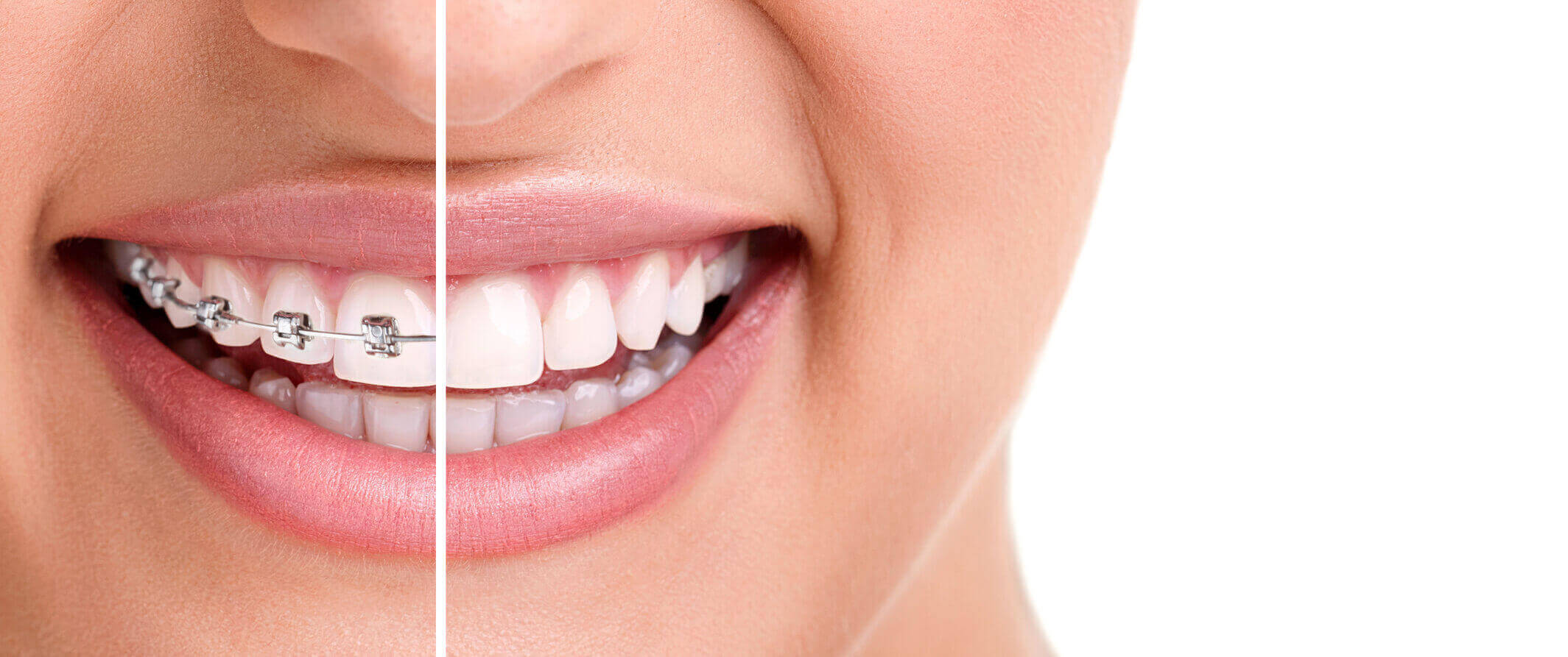 Orthodontic Treatment in Nagpur